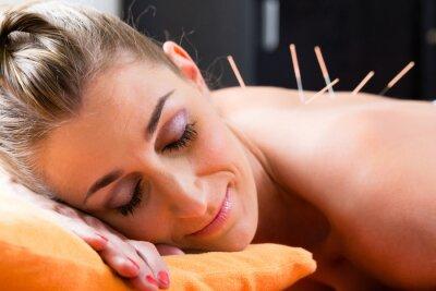 Fototapeta Frau bei Akupunktur mit Nadeln im Rücken