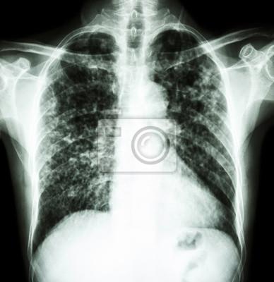 Gruźlica - jedna z najbardziej śmiertelnych chorób zakaźnych na świecie