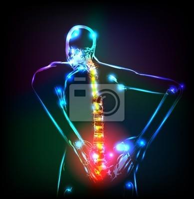 Ludzki szkielet w x-ray, ból pleców