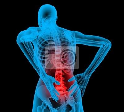 Ludzki szkielet w x-ray widzenia, ból pleców, bóle pleców