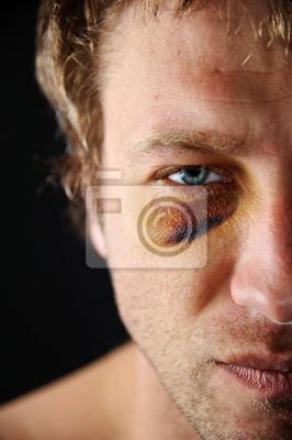 Posiniaczone oko.