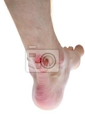 Obraz rany na nodze krwią