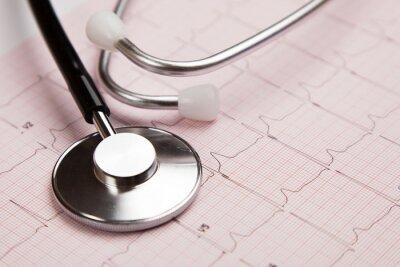 Obraz Raport medyczny i cardiogramobraz
