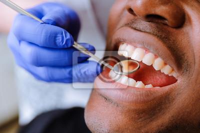 Plakat African m ?? czyzn pacjenta uzyskiwanie dentystycznego leczenia w klinice stomatologicznej