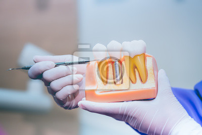 Plakat Dentist with tooth implant false teeth. Dentistry and healthcare concept at dental clinic.