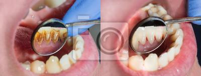 Plakat Płytka pacjenta, kamień. Leczenie dentystyczne płytki nazębnej, profesjonalna higiena jamy ustnej. Pojęcie szkodliwości palenia i czyszczenia zębów