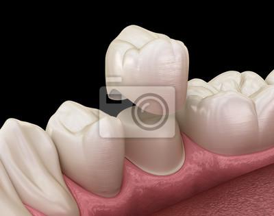 Plakat Proces montażu zęba przedtrzonowego korony dentystycznej. Medycznie dokładna ilustracja 3D leczenia ludzkich zębów