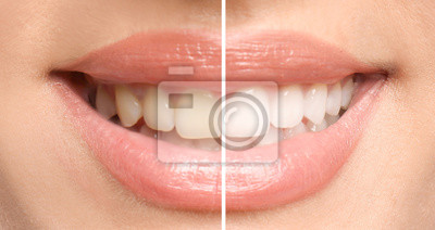 Plakat Smiling woman before and after teeth whitening procedure, closeup
